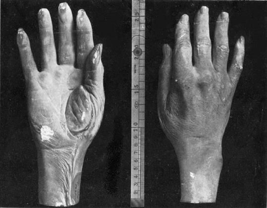 Casts of the right hand of Nicolo Paganini